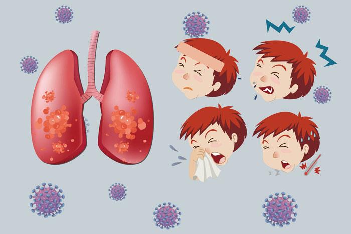 百日咳的症状,能自行痊愈吗?